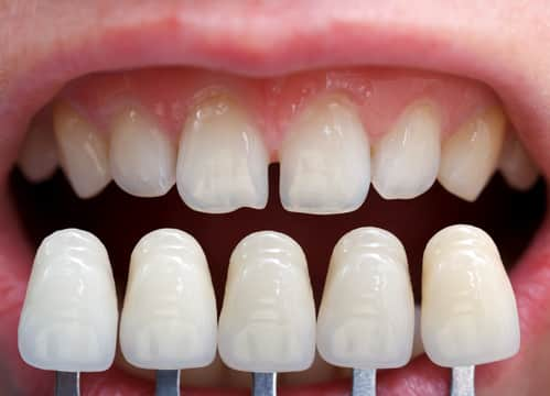 dental veneers in riverside, ca